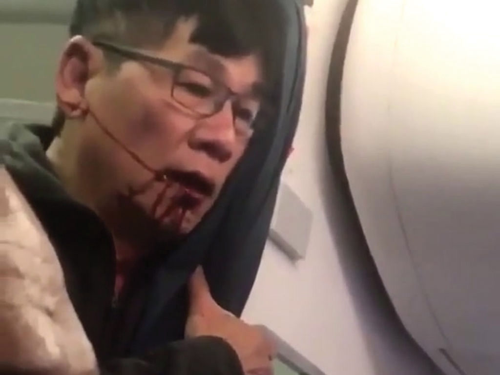 American tries to learn from United's mistakes in incident